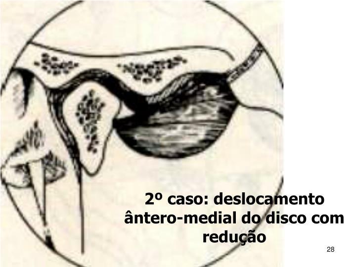2º caso: deslocamento ântero-medial do disco com redução