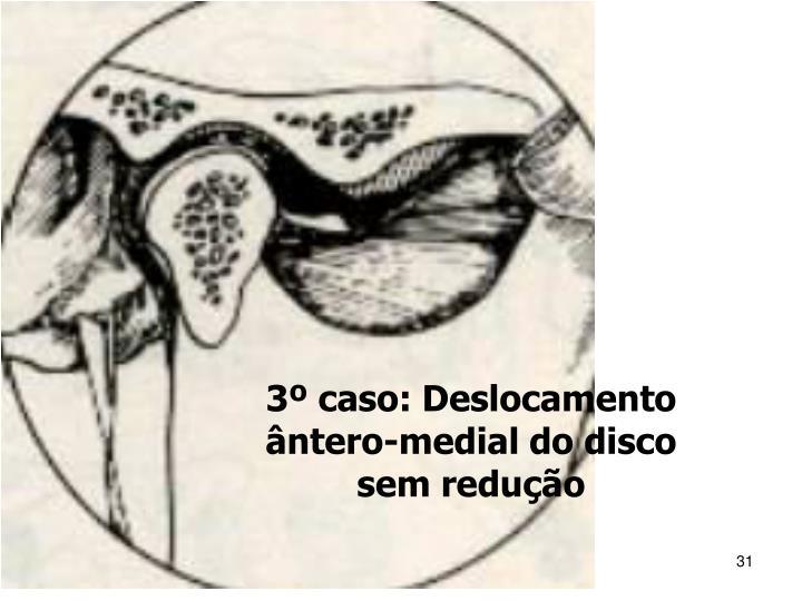 3º caso: Deslocamento ântero-medial do disco