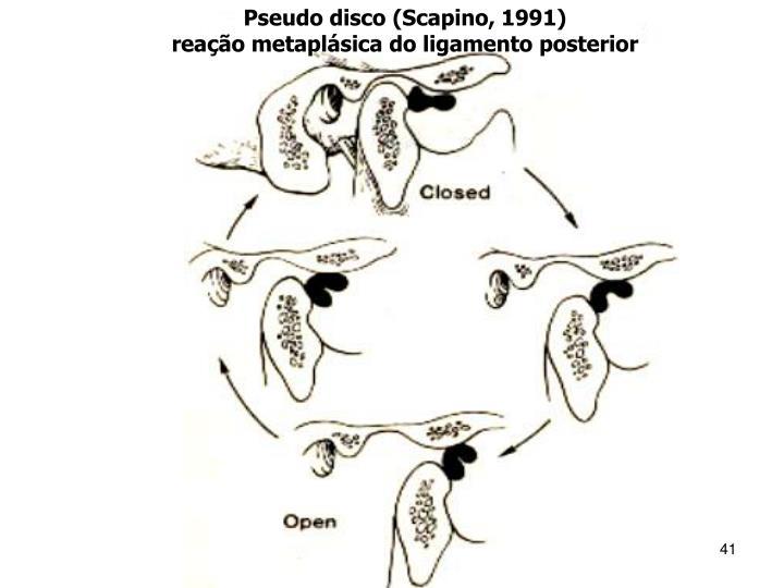 Pseudo disco (Scapino, 1991)