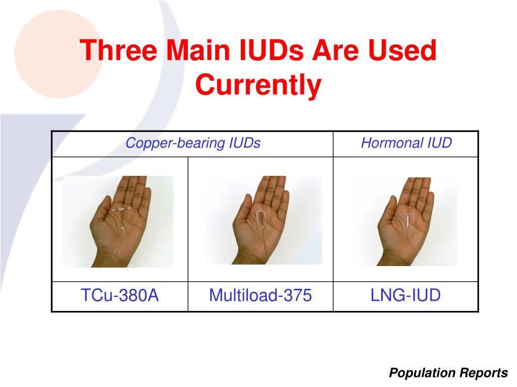 Three Main IUDs Are Used Currently