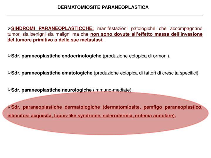 sindromi neurologiche paraneoplastiche Sindromi neurologiche paraneoplastiche informazioni cliniche: le sindromi neurologiche paraneoplastiche (pns) sono malattie del sistema nervoso centrale e periferico che si verificano in relazione diretta con lo sviluppo del tumore.