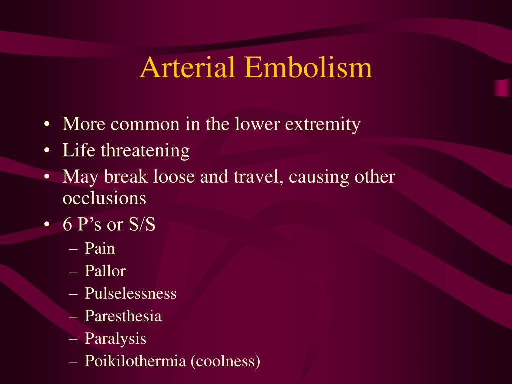 Arterial Embolism
