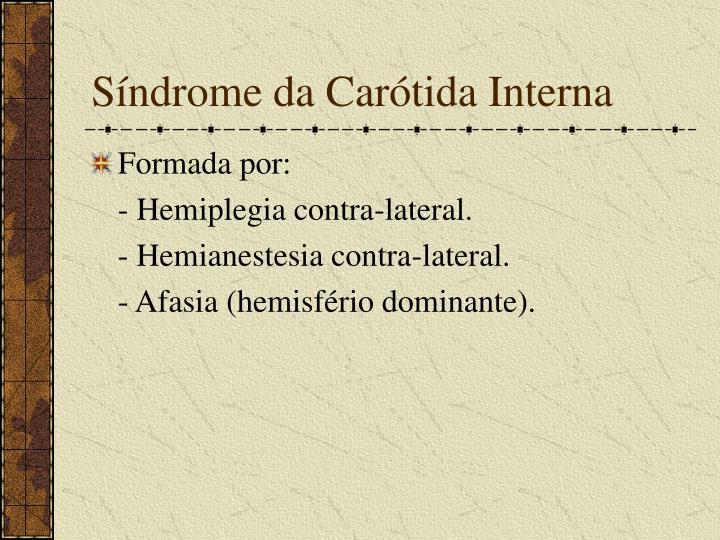 Síndrome da Carótida Interna