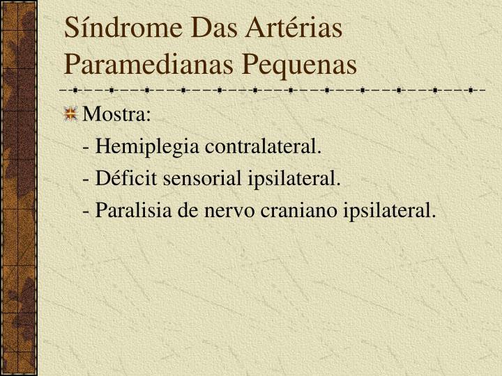 Síndrome Das Artérias Paramedianas Pequenas