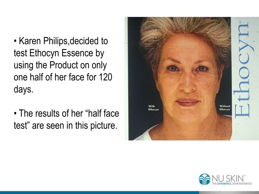Karen Philips,decided to test Ethocyn Essence by using the Product on only one half of her face for 120 days.