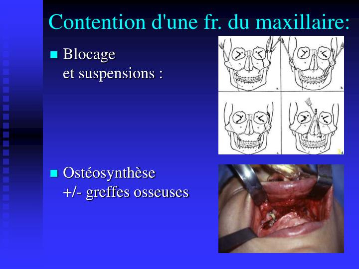Contention d'une fr. du maxillaire: