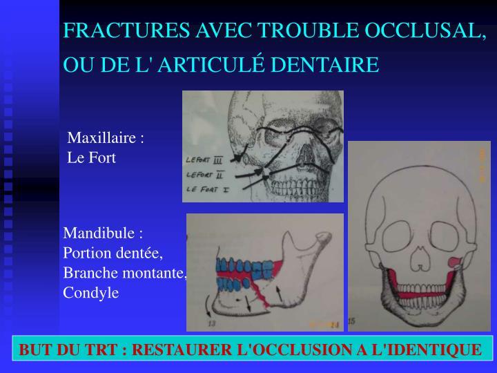 FRACTURES AVEC TROUBLE OCCLUSAL, OU DE L' ARTICULÉ DENTAIRE