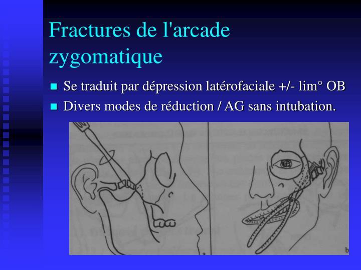 Fractures de l'arcade zygomatique