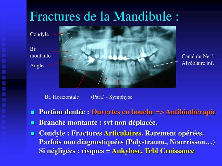 Fractures de la Mandibule :