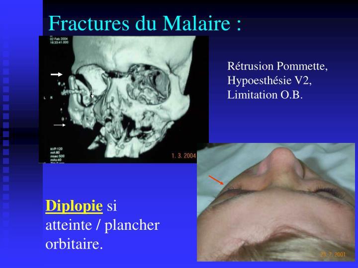 Fractures du Malaire :
