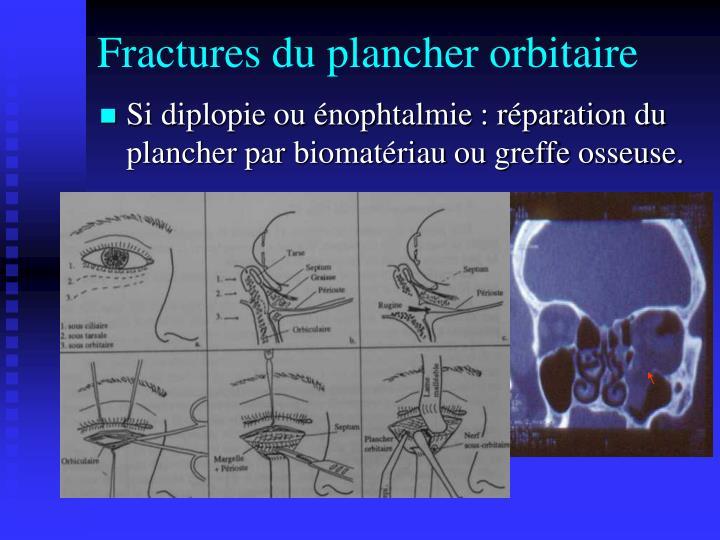 Fractures du plancher orbitaire
