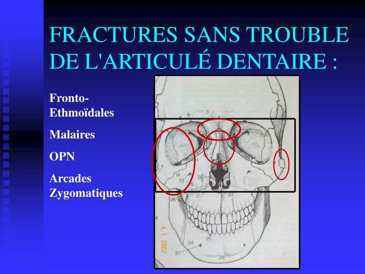 FRACTURES SANS TROUBLE DE L'ARTICULÉ DENTAIRE :