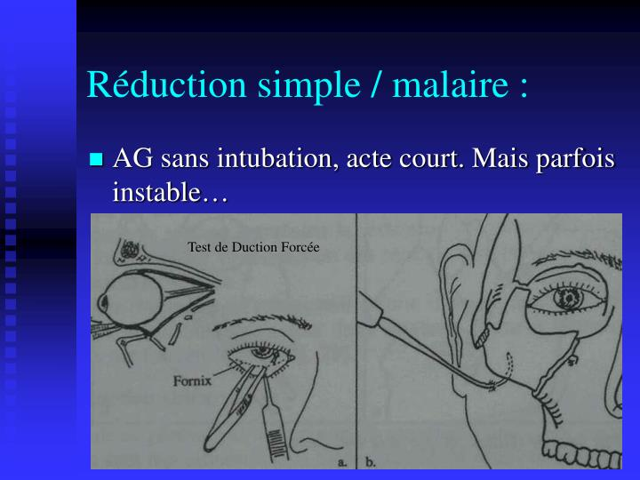 Réduction simple / malaire :