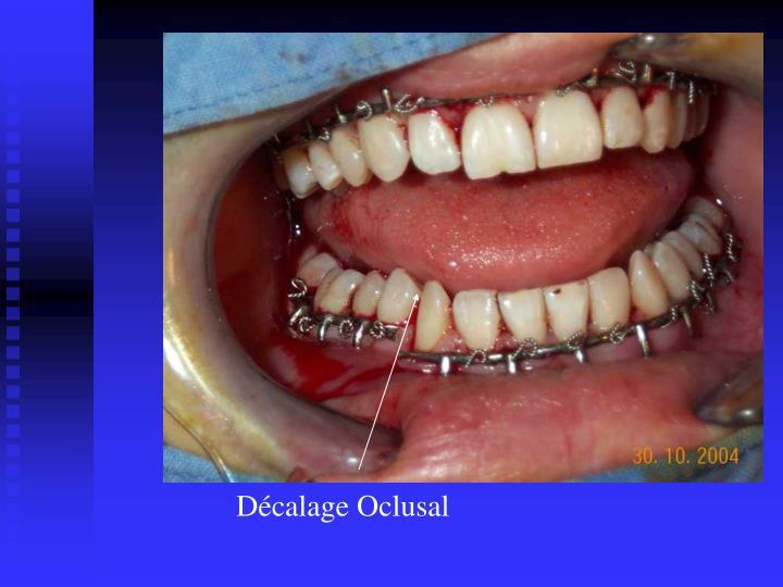 Décalage Oclusal