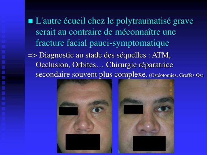 L'autre écueil chez le polytraumatisé grave serait au contraire de méconnaître une fracture facial pauci-symptomatique