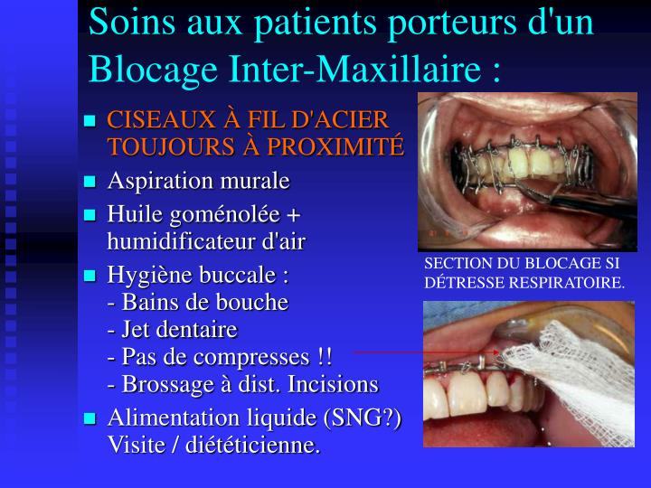 Soins aux patients porteurs d'un Blocage Inter-Maxillaire :