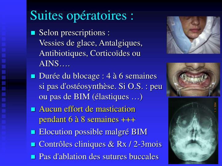 Suites opératoires :