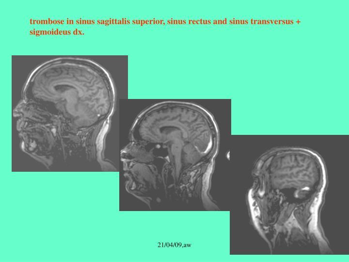 sinus trombose
