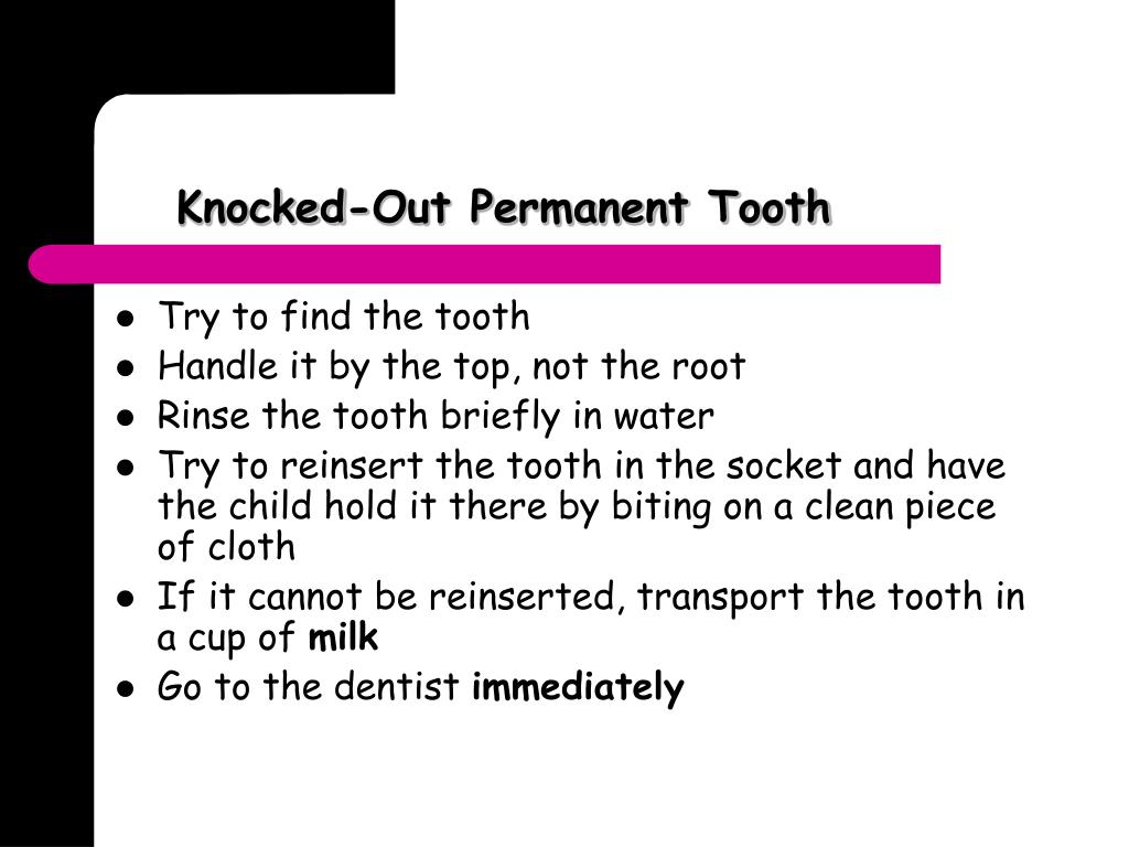 Knocked-Out Permanent Tooth