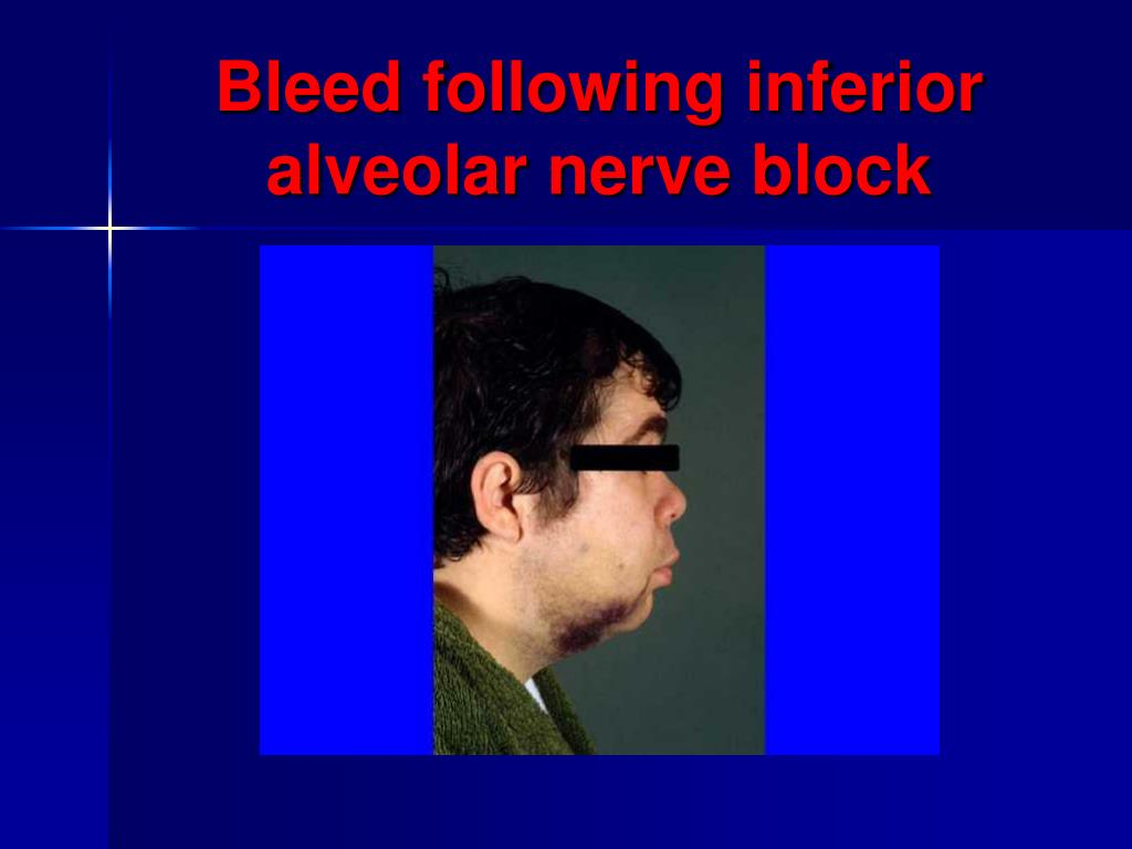 Bleed following inferior alveolar nerve block