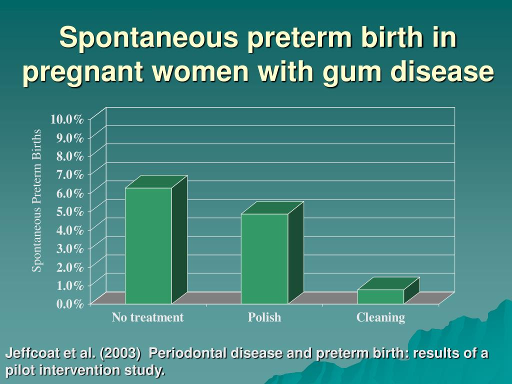 Spontaneous preterm birth in pregnant women with gum disease