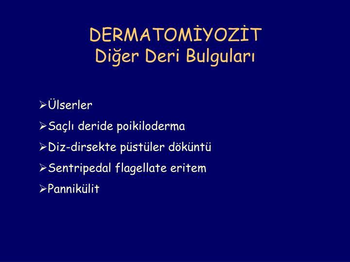 DERMATOMİYOZİT