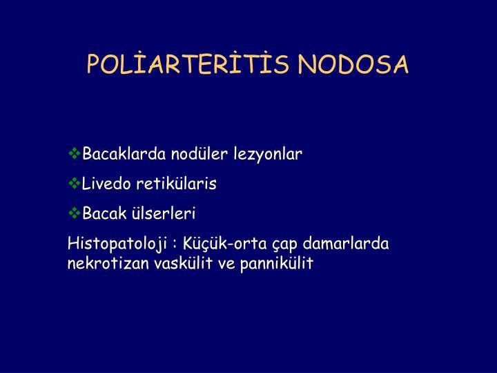 POLİARTERİTİS NODOSA