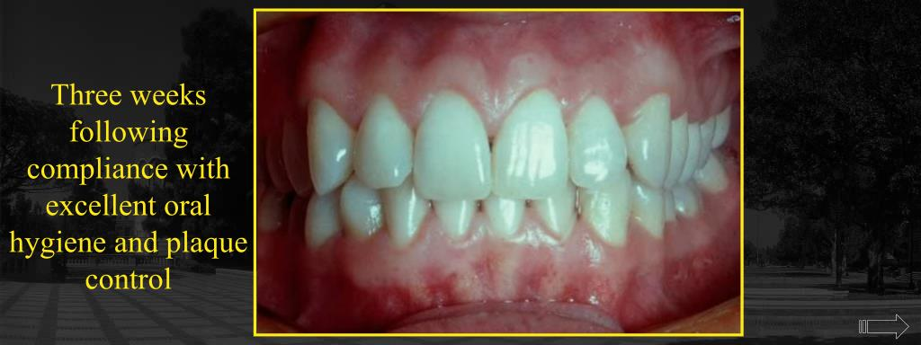 Three weeks following compliance with excellent oral hygiene and plaque control