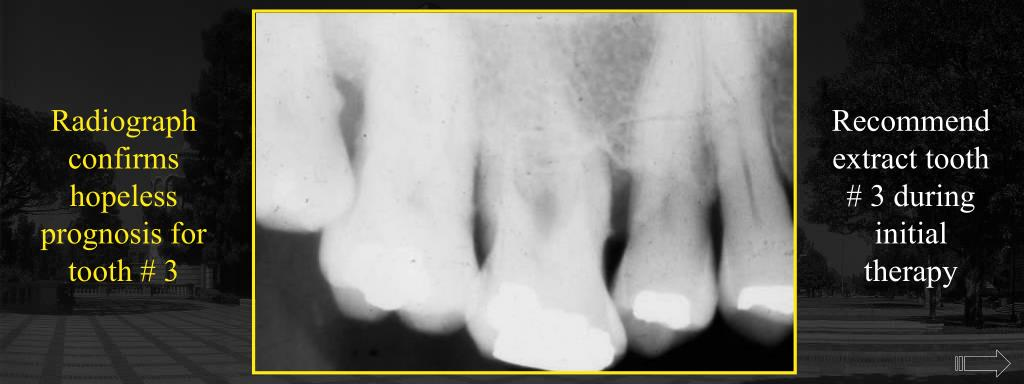 Radiograph confirms hopeless prognosis for tooth # 3