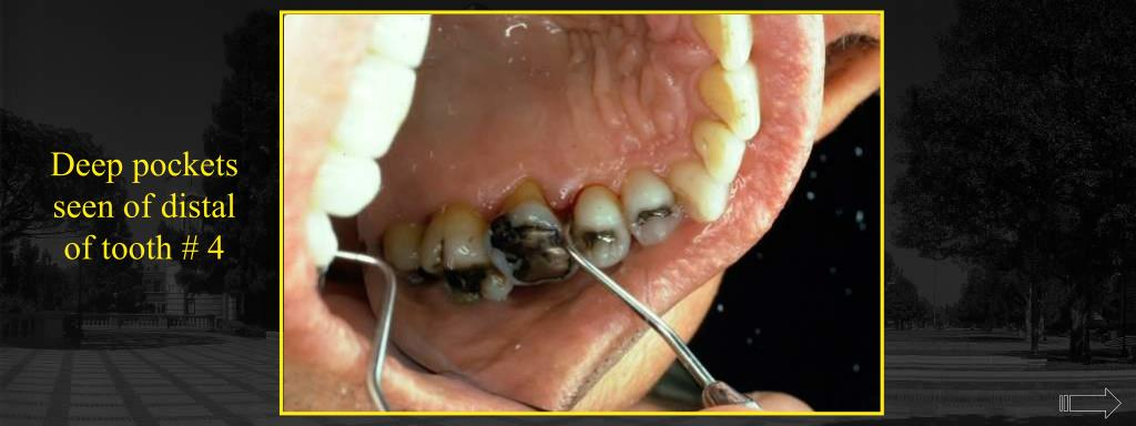 Deep pockets seen of distal of tooth # 4