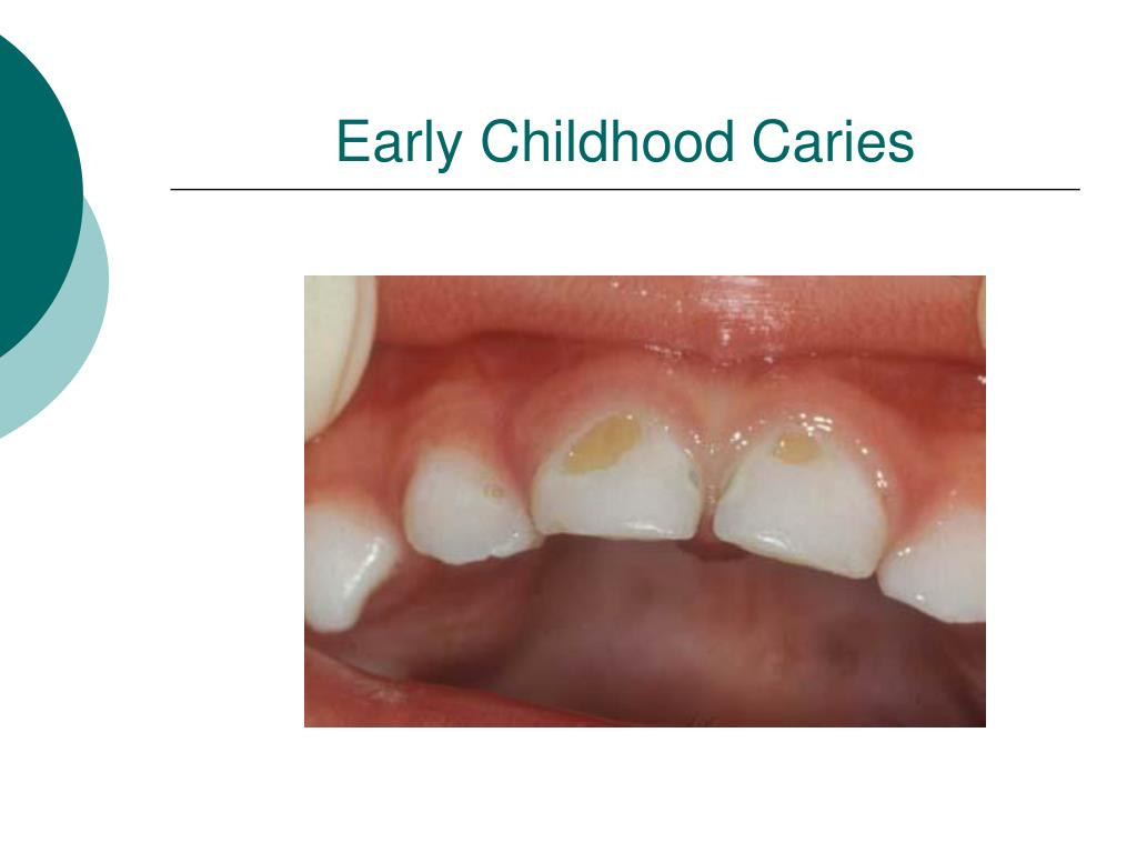 Early Childhood Caries