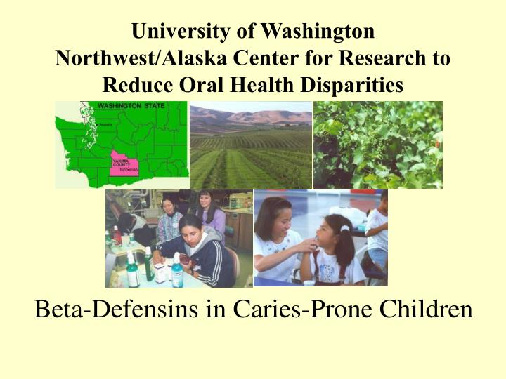 University of washington northwest alaska center for research to reduce oral health disparities