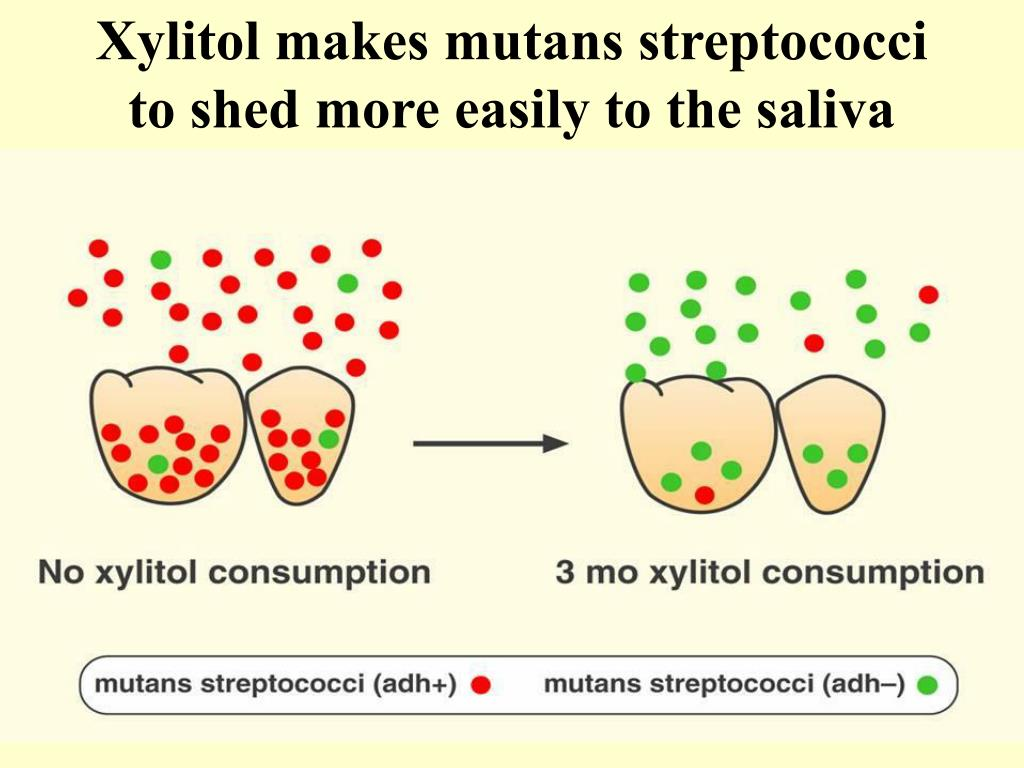 Xylitol makes mutans streptococci to shed more easily to the saliva