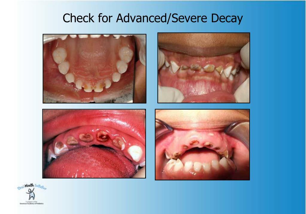 Check for Advanced/Severe Decay