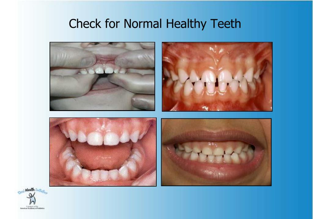 Check for Normal Healthy Teeth