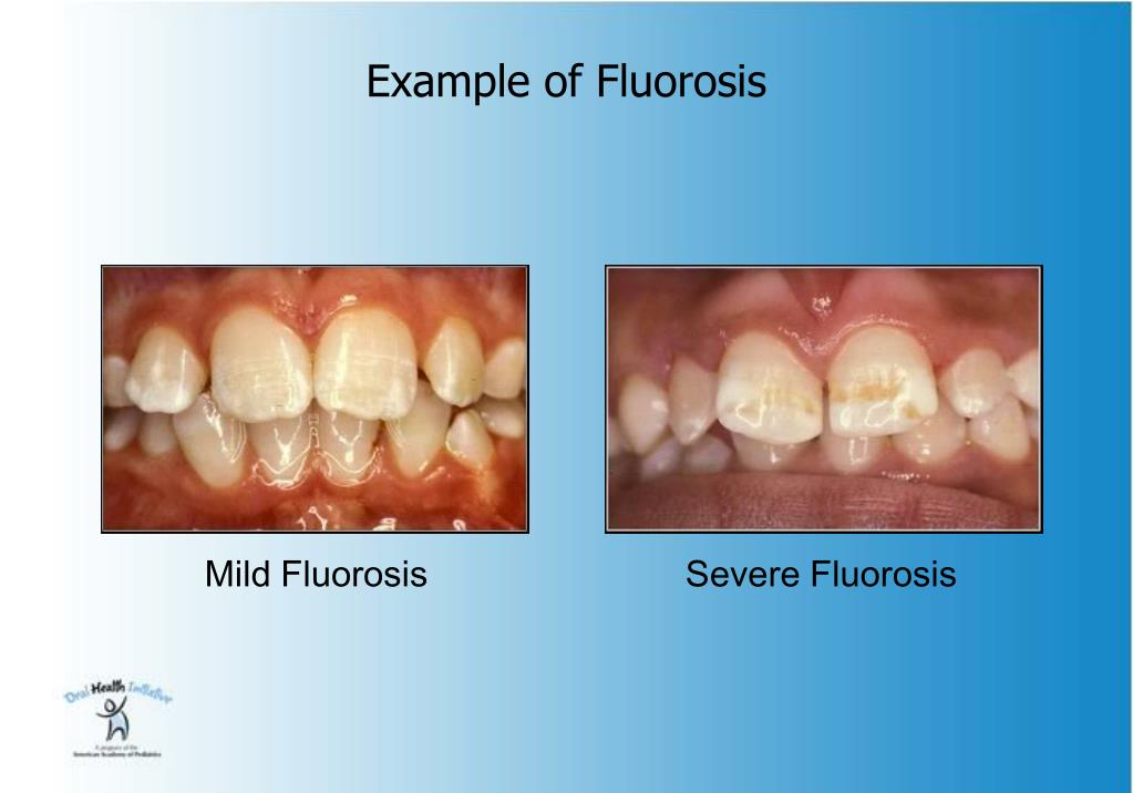 Example of Fluorosis