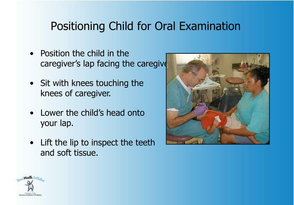 Positioning Child for Oral Examination