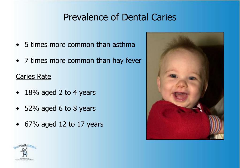 Prevalence of Dental Caries