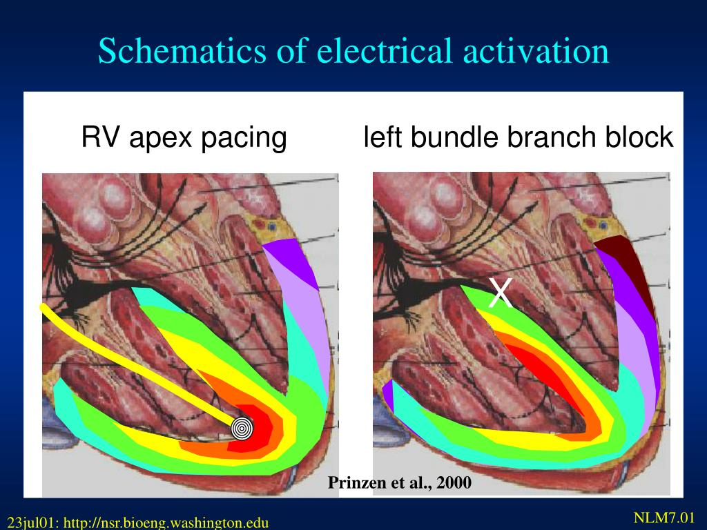 Schematics of electrical activation
