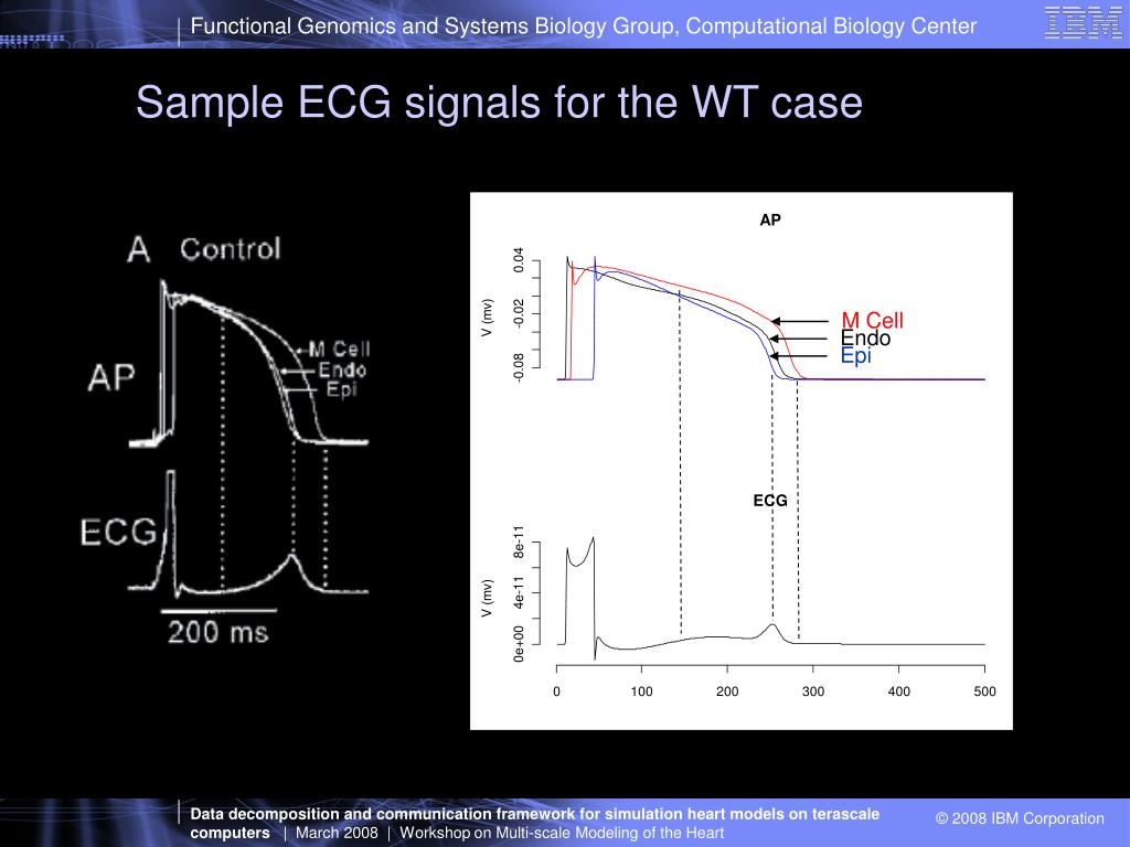Sample ECG signals for the WT case