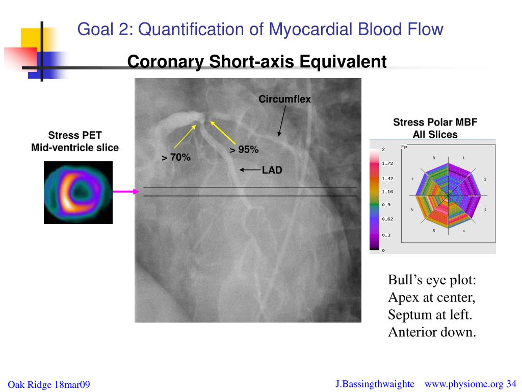 Goal 2: Quantification of Myocardial Blood Flow