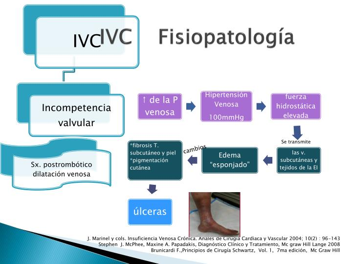 IVC    Fisiopatología