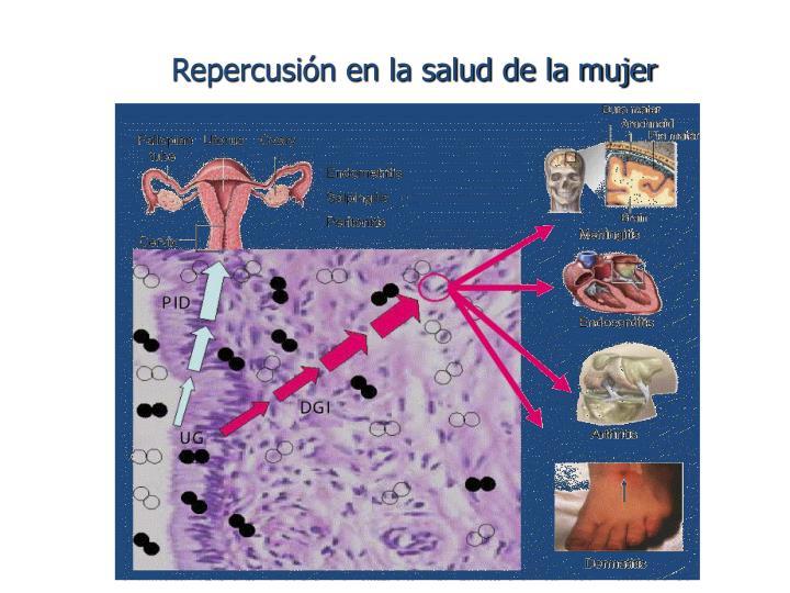Repercusión en la salud de la mujer