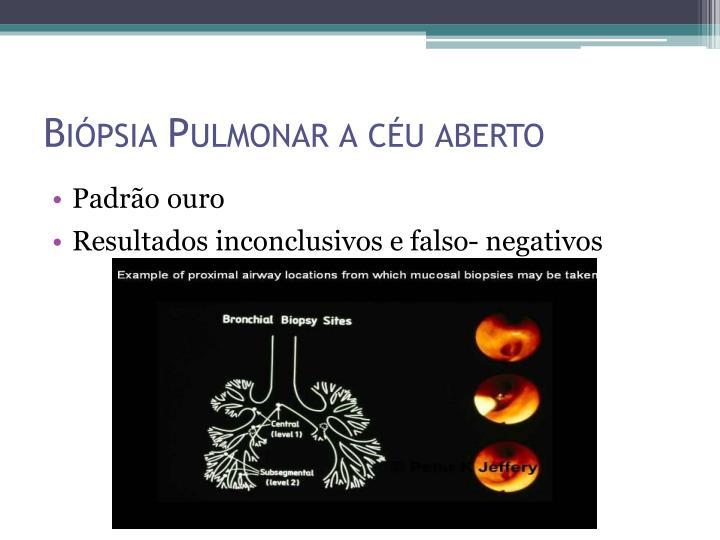 Biópsia Pulmonar a céu aberto