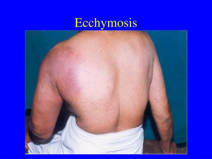 Ecchymosis