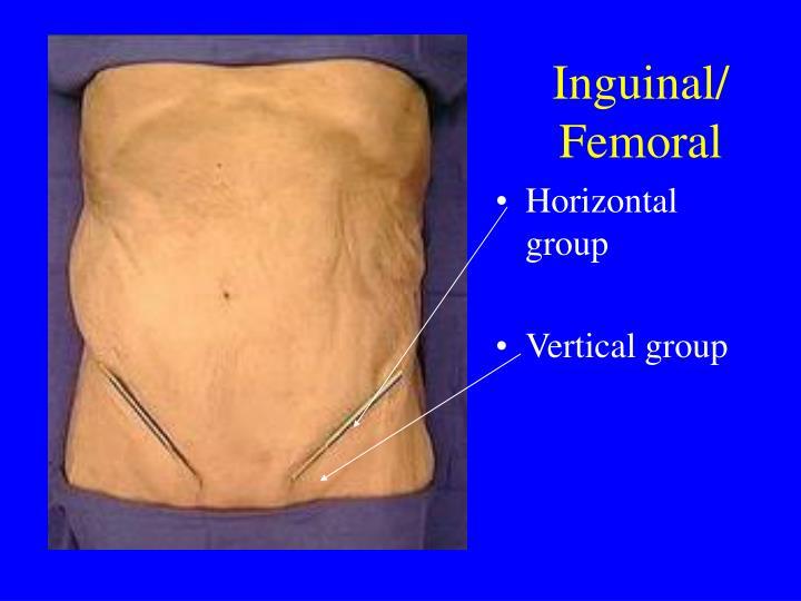 Inguinal/ Femoral