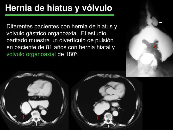 Hernia de hiatus y vólvulo