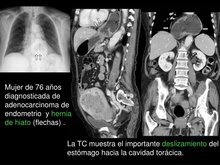 Mujer de 76 años diagnosticada de adenocarcinoma de endometrio  y