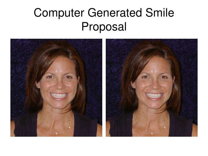 Computer Generated Smile Proposal