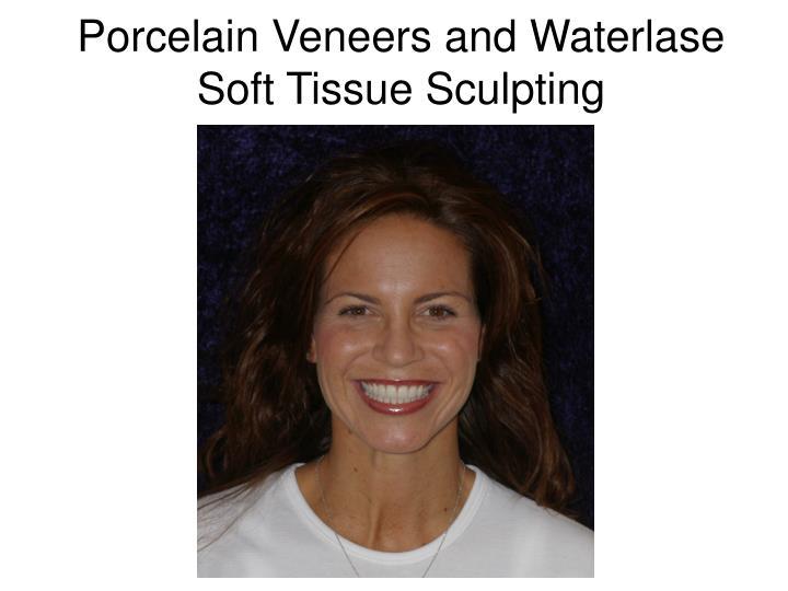 Porcelain Veneers and Waterlase Soft Tissue Sculpting